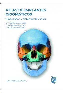 Atlas de implantes Gigomáticos